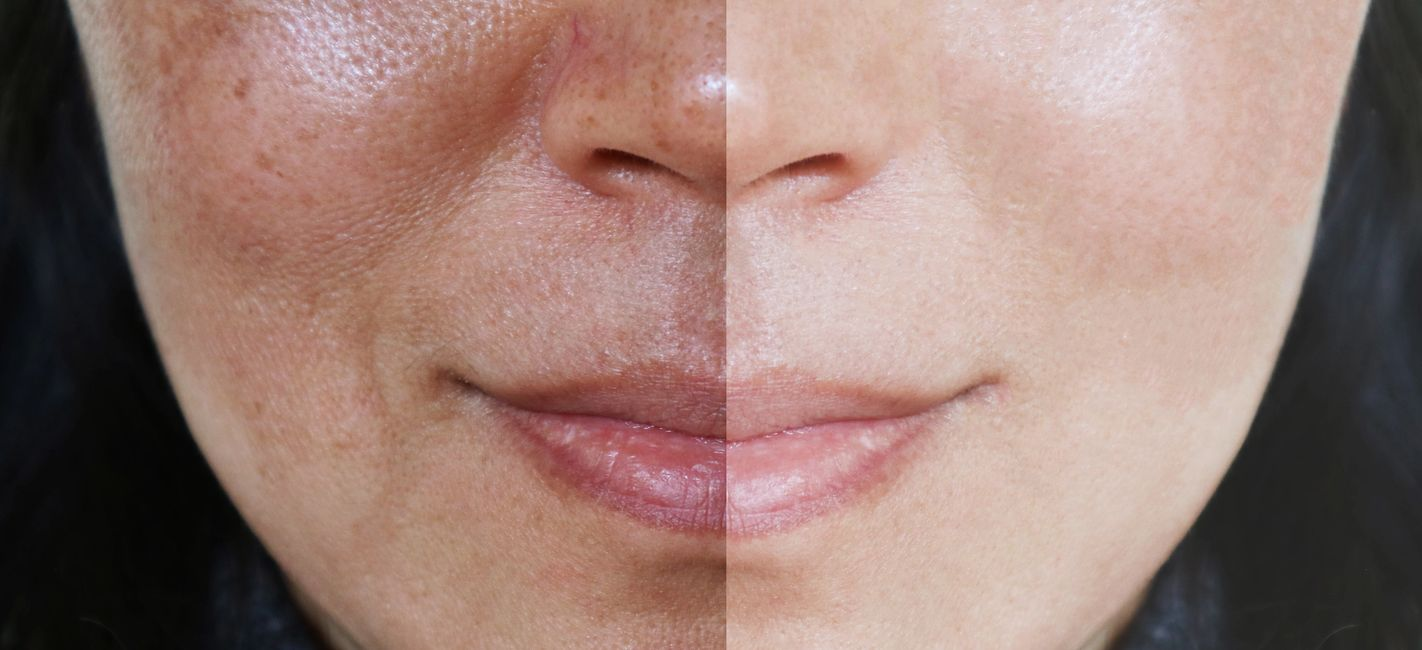 Melasma treatment little rock, hyperpigmentation treatment little rock,  melasma therapy Arkansas