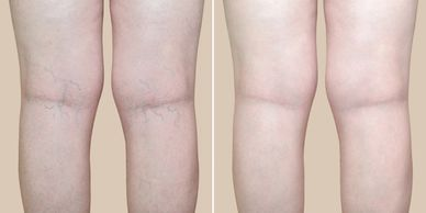 the best offer on spider vein removal little rock Arkansas, spider vein laser removal legs near me