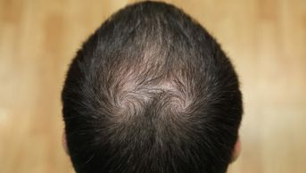 PRP treatment thinning hair little rock, PRP Acell hair regrowth little rock, hair loss therapy AR
