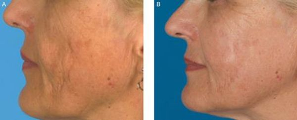 Autologous fat or nono fat injection, transfer for cheeks enhancement and scar correction.