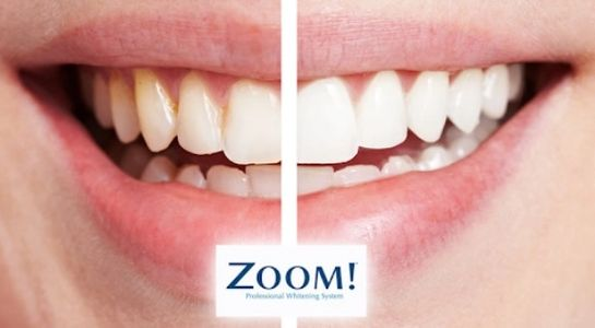 dental whitening monterrey mexico