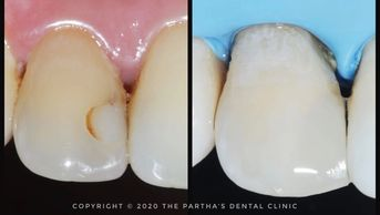 Image of Cosmetic Dentistry Treatment at The Partha's Dental Clinic, Bhubaneswar
