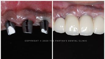 Image of Dental Implant Treatment at The Partha's Dental Clinic, Bhubaneswar