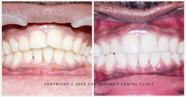 Image of Orthodontic Treatment at The Partha's Dental Clinic, Bhubaneswar