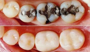 Tooth colored fillings, composite, white