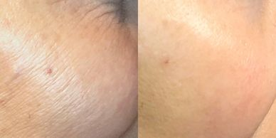 Non invasive skin tightening in youngstown oh