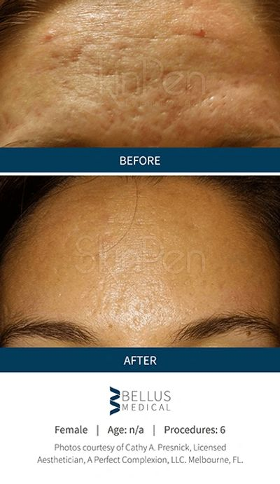 Best Microneedling Near Me