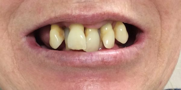 Before immediate denture at Dorset Park Denture Clinic