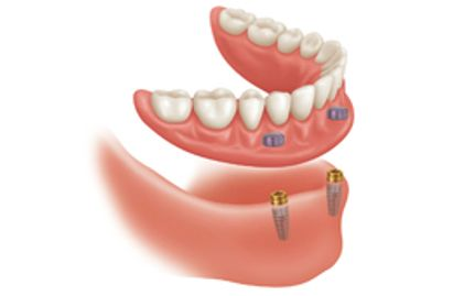 Lower implant denture at Dorset Park Denture Clinic