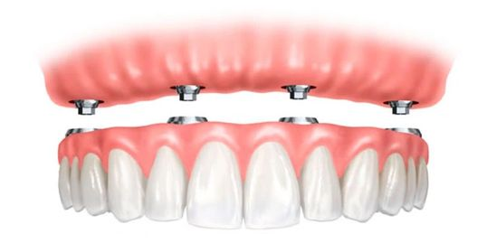 Upper implant retained denture at Dorset Park Denture Clinic