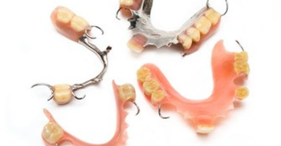 Cast partial denture, acrylic partial denture, flexible denture