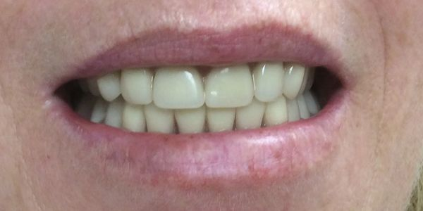 After Immediate denture at Dorset Park Denture Clinic