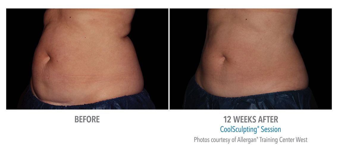 Fat freezing and Coolsculpting results, before and after pictures