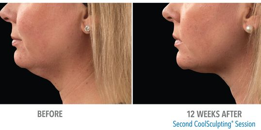 Double Chin fat freezing coolsculpting, lose fat, look younger