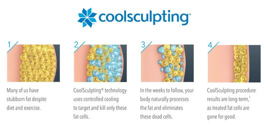 fat reduction, cryolipolysis, lipolysis, fat freezing, Coolsculpting