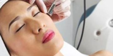 Microdermabrasion, Microderm, Skincare Treatment, Acne Treatment,