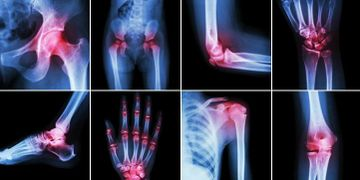 whether it is arthritis of the knee, hip, shoulder, hand or multiple sclerosis, ankylosing spondylit
