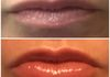Plumping of the upper and lower lips with Volbella