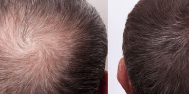 PRP (platelet-rich plasma) therapy for hair loss is a three-step medical treatment