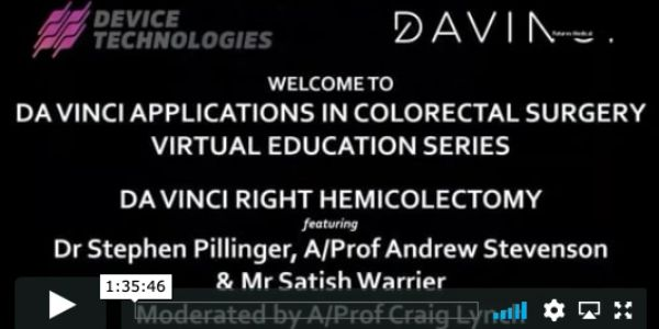 DaVinci applications in Colorectal surgery DaVinci Right Hemicolectomy Steve Pillinger Andrew Steven