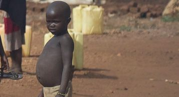 Malnourished South Sudan boy waits in the water line at a refugee camp.