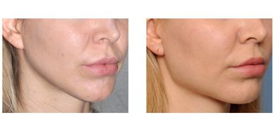 jaw contouring shaping Fillers Teosyal Wrinkles RXCOSMETICS Botox Lindsay