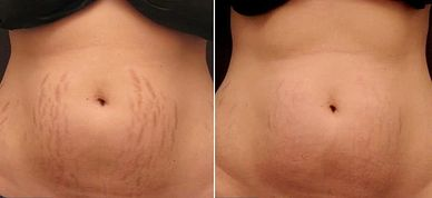 Stretch mark removal Lindsay on