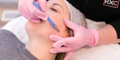 skin care facial med spa acne chemical peel dermaplaning botox fillers lindsay on peterborough