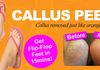 Removes Callus's quickly and gently for softer feet