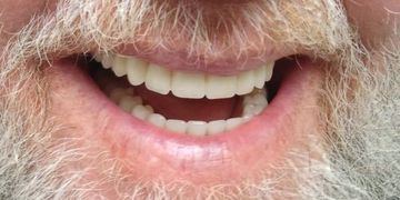 One Day Porcelain Denture Doctor of Armani Dentures Chevy Chase Maryland