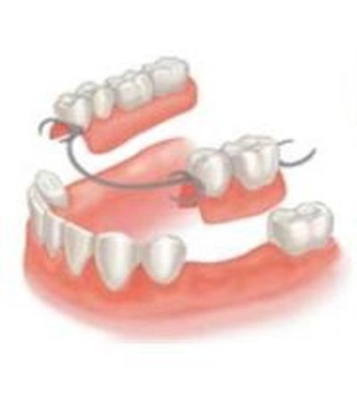 Partial Denture at Armani Dentures Chevy Chase Bethesda MD DC VA