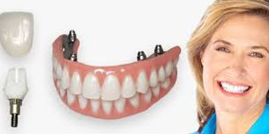 Free all on 4 denture implant consultation at armani dentures for permanent denture stabilization