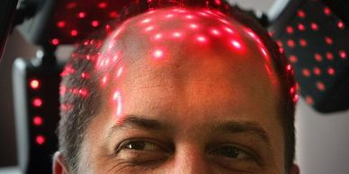 Trichology plus Laser Therapy is a great way to combat Hair loss.