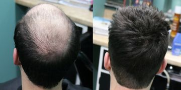 We combat Hair Loss with sure methods the way Hair Club and others do but better.