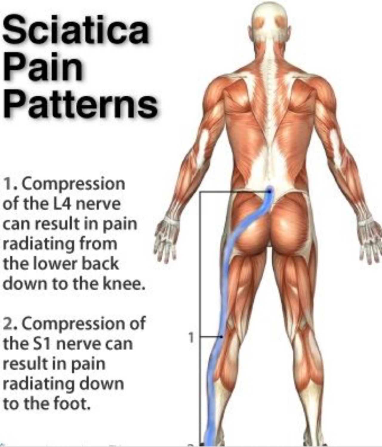 can massage help with sciatica?