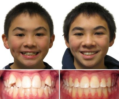 Adults and children can benefit from braces. Straight teeth and a correct bite can improve your overall dental health. We offer metal and clear braces. Orthodontics, braces in Los Angeles Boyle heights