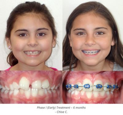 Clear braces: Many patients now choose braces made from ceramic that has been colored to blend in with the teeth. These are a popular choice among adults who want to maintain their professional appearance while wearing braces. Metal braces: brackets are smaller and less obtrusive than ever before, and they can be fun with color rubber bands.
