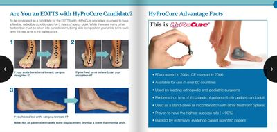 Hypocure minimally invasive ankle realignment surgery, click on image to find out more.