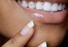 LED teeth whitening + tooth gems