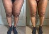 Thigh Lipo + Cellulite Reduction, 4th Session