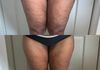 Thigh Lipo + Cellulite Reduction Before and After 1 session