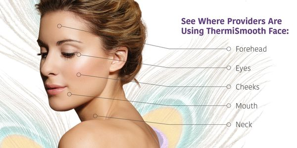 See where providers are using ThermiSmooth Face: forehead, eyes, cheeks, mouth and neck