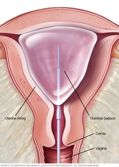 endometrial bleeding, uterine bleeding, ablation, endometrial ablation, pelvic pain, ultrasound