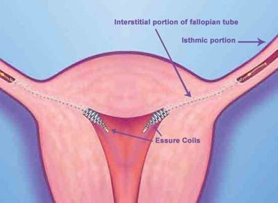 fertility, infertility, essure coils, contraception, endometrial ablation,  ultrasound