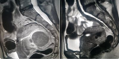 Uterine MRI of fibroid, pre and post uterine artery embolization