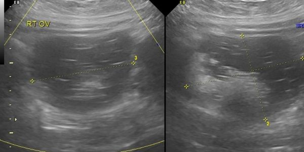 Typical dermoid.  This one incidentally seen during pregnancy, which is a common occurrence.