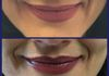 Client makeup (top) and fresh lip tattoo (bottom)