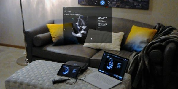 Holographic view of point of care ultrasound image through the HoloLens floating above a Butterfly IQ point of care ultrasound probe/iPad and Surface Book 2.