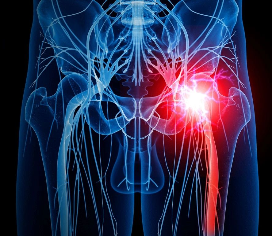 Sciatic Nerve Pain And The Bpr Method