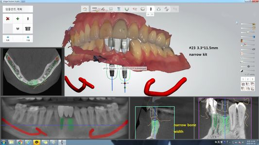 GUIDED IMPLANT SURGERY, LOS GATOS CA DENTIST, DENTAL IMPLANTS, FULL MOUTH REHAB